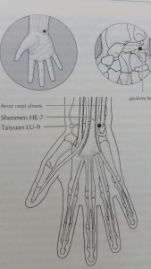 ShenMen-Acupuncture point for insomnia