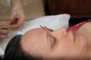 YinTang, acupuncture point to treat insomina